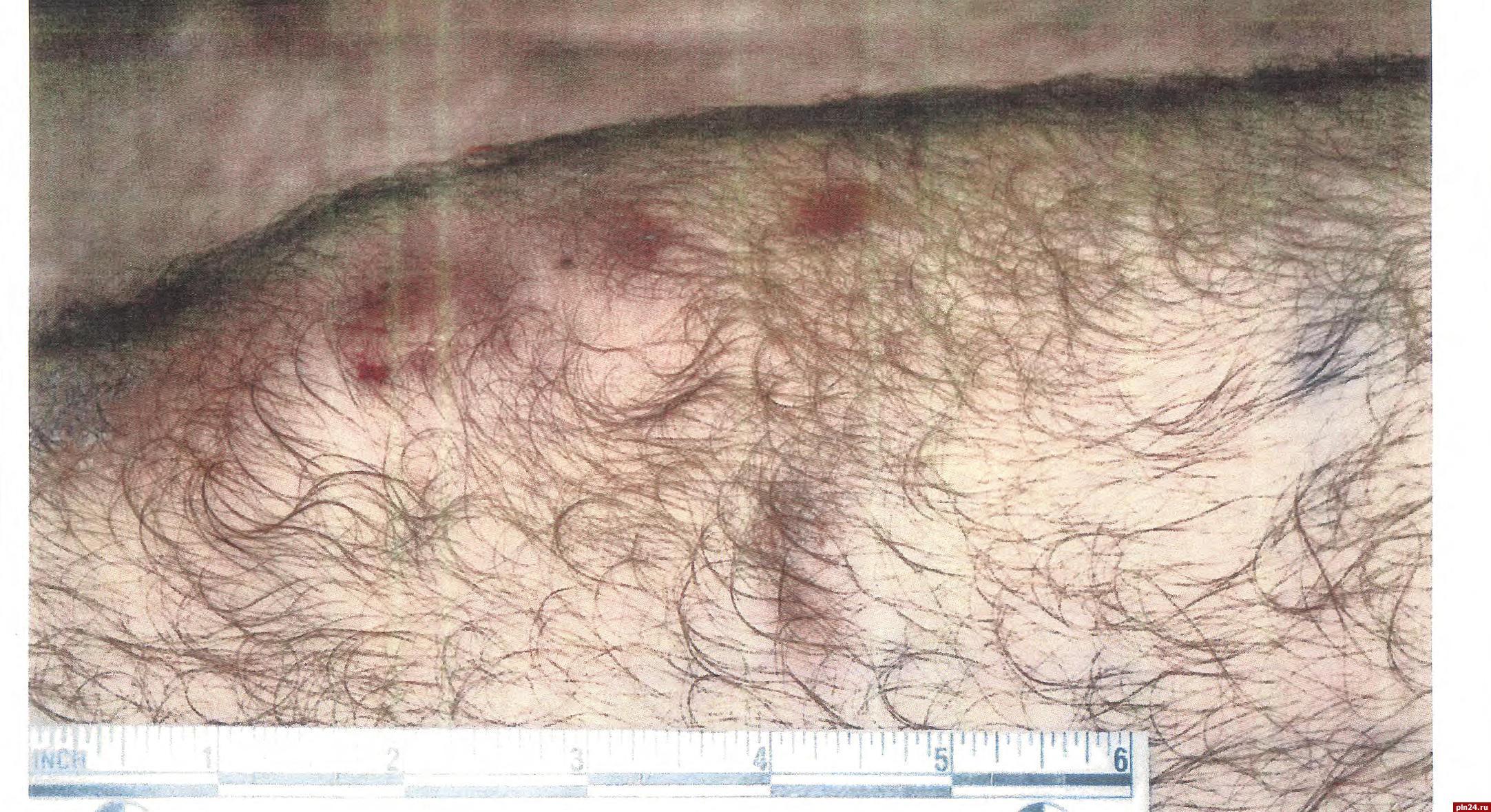 Пентагон обнародовал шокирующие фото пыток заключённых